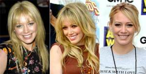 gal_teeth_hilary-duff