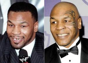 gal_teeth_mike-tyson