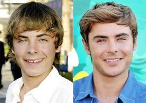 gal_teeth_zac-efron