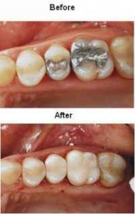 before_and_after-cerec2-190x300